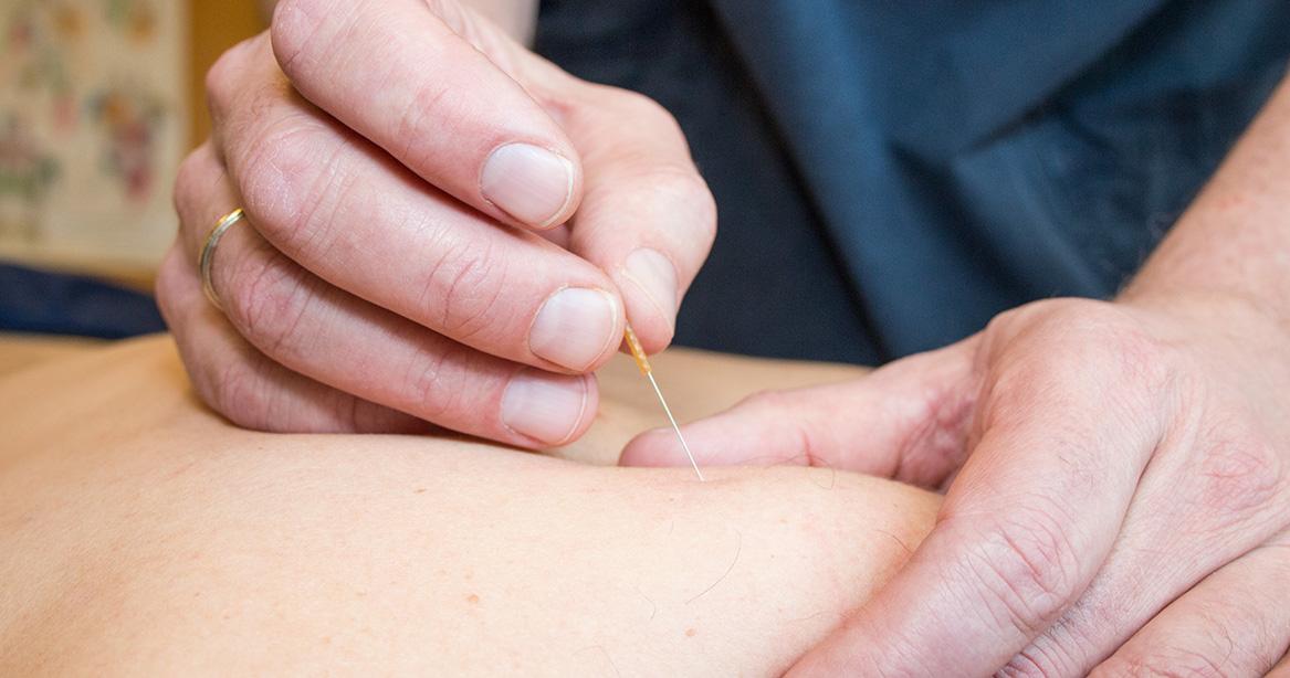 page-akupunktur
